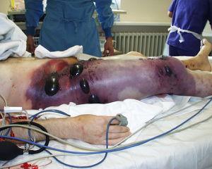 Gas_gangrene