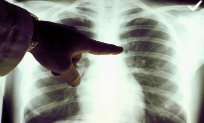 In ultimii 10 ani, numarul deceselor cauzate de tumori au crescut cu 23% in Prahova